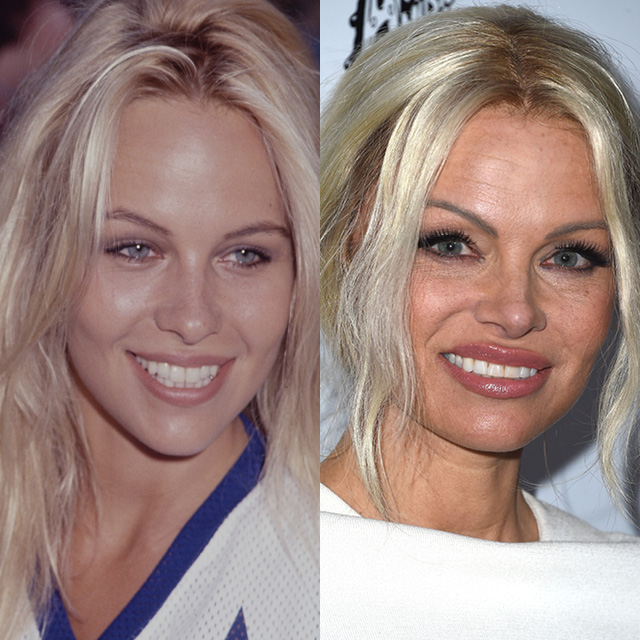Памела Андерсон в 1990 и в 2016